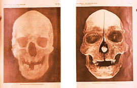 The Chaneelade Skull and a skull belonging to an Inuit person.