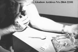 Heroin addict getting their hit, in the arm, Calgary, Alberta.